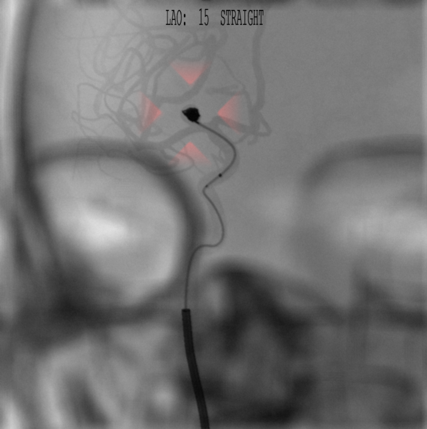 Intracranial aneurysm embolization