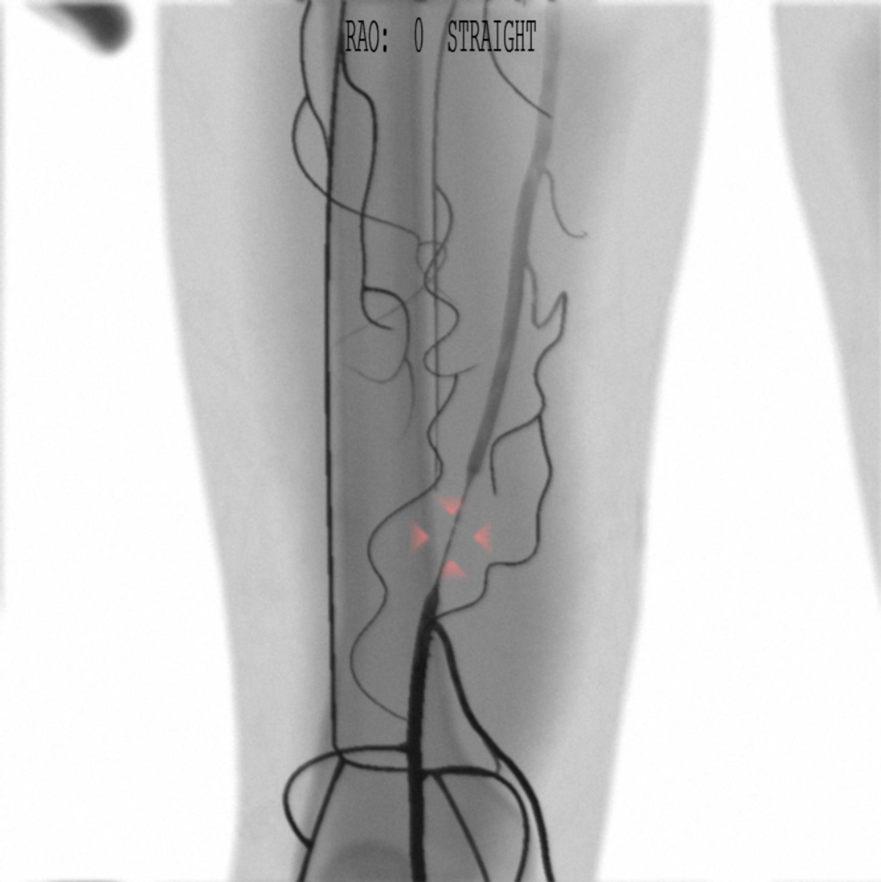 AngioVision SFA stenting