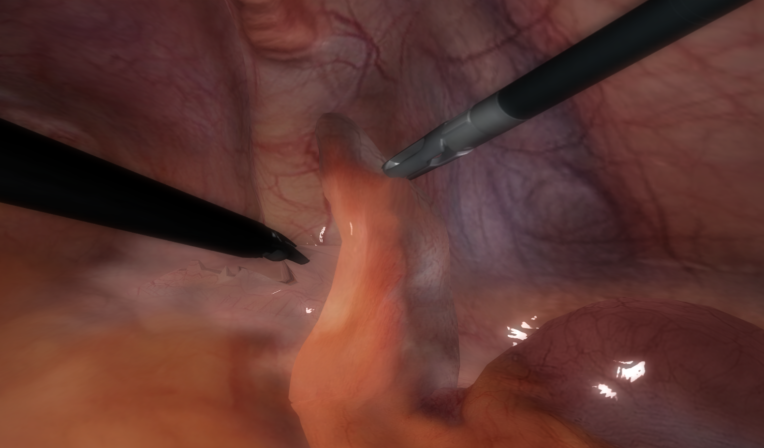 LapVision Appendectomy