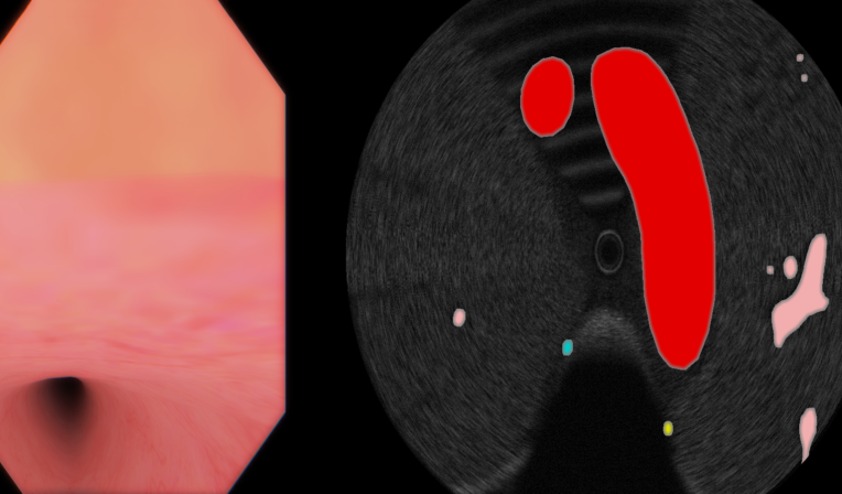 Endoscopic Ultrasonography