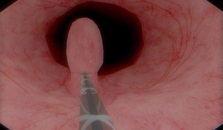 Polypectomy in Colonoscopy