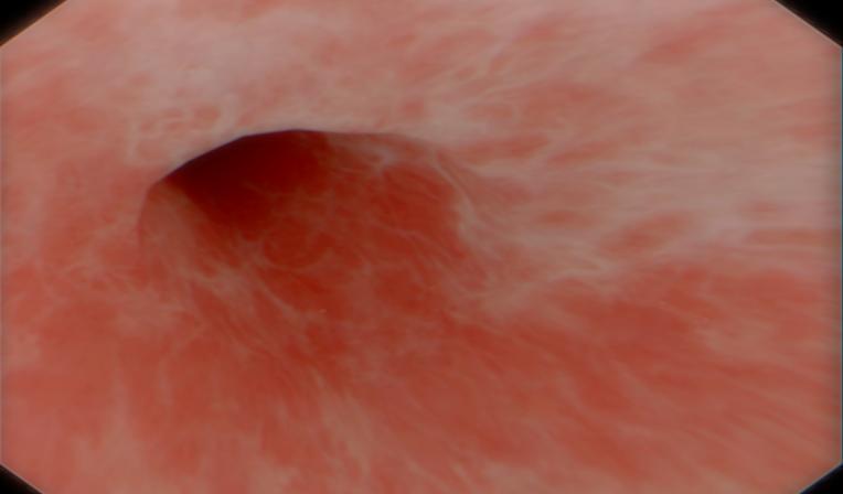 Random Anatomy of Sigmoidoscopy