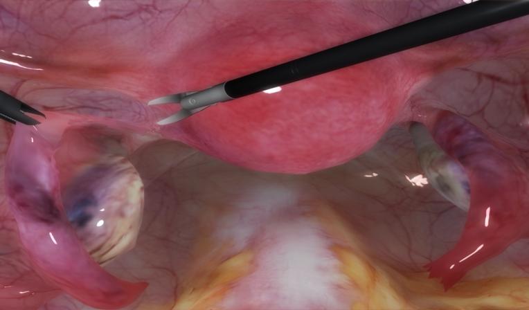 LapVision salpingo oophorectomy