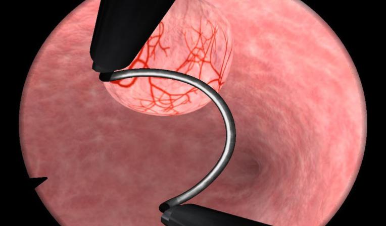 Submucosal myomatous nodules removal, complex case
