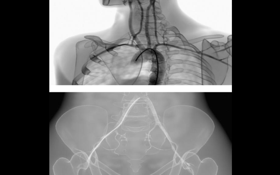 AngioVision X-Ray